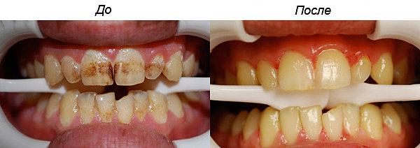 Можно ли в состоянии алкогольного опьянения удалить зуб